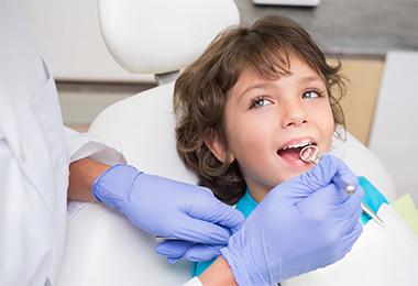 Dental-Sealants-austin