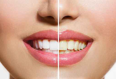 Teeth Whitening Austin